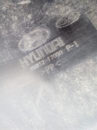 Локер передний правый Hyundai Matrix 8681217000